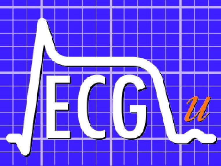 ECG-u